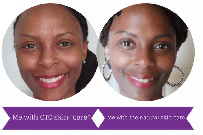Perfectly Natural Skin Care That Works